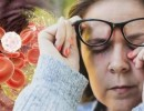 مؤشرات في عينيك تدل على ارتفاع الكوليسترول.. تعرف عليها